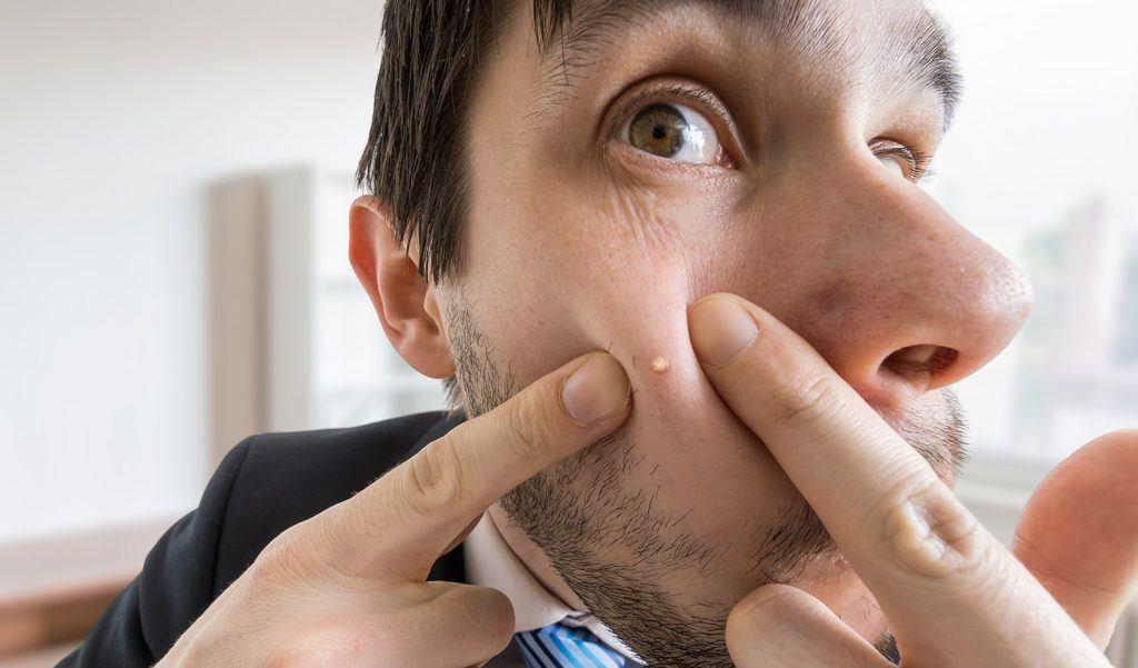 Tokyo reccomend Clear facial acne