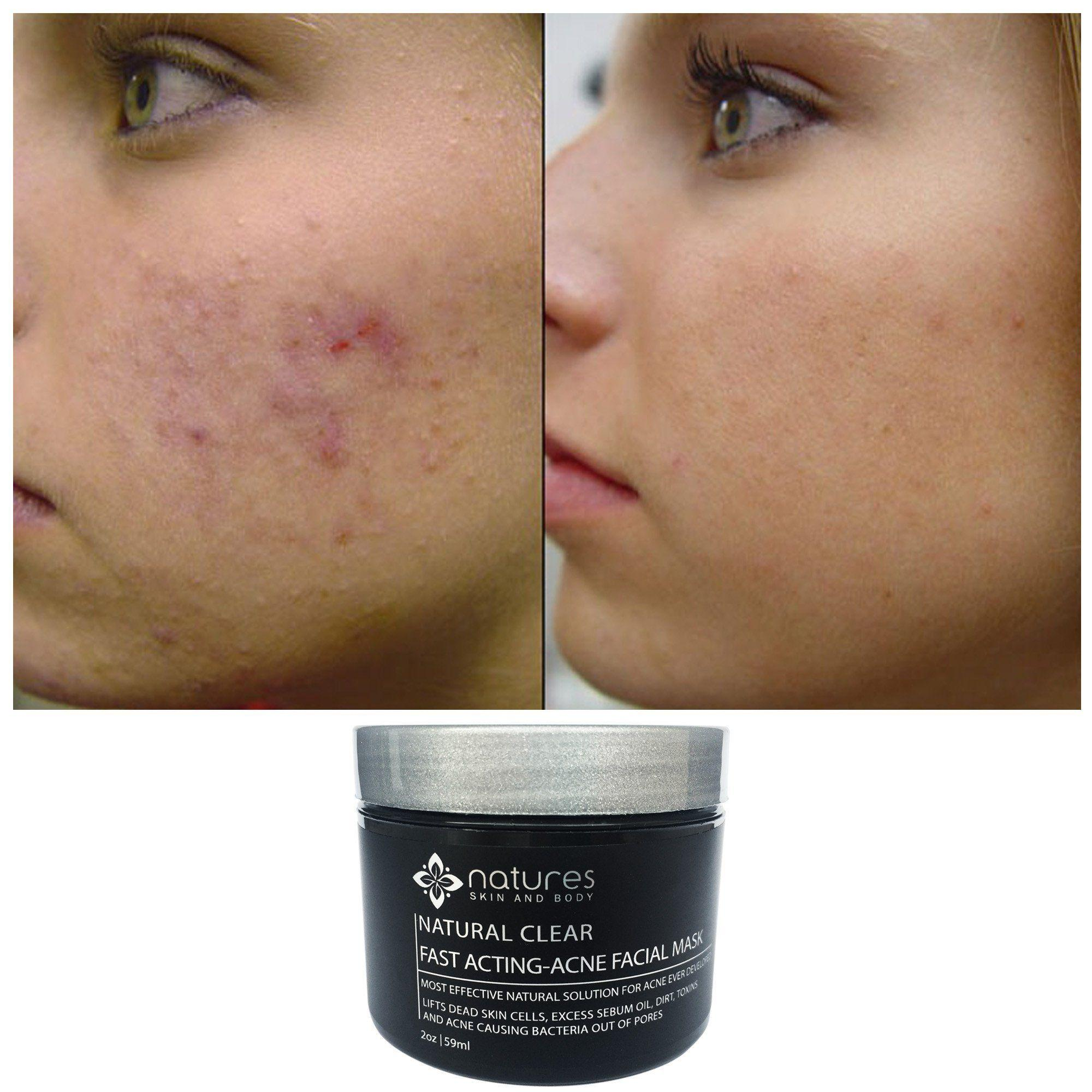 Mad D. reccomend Clear facial acne