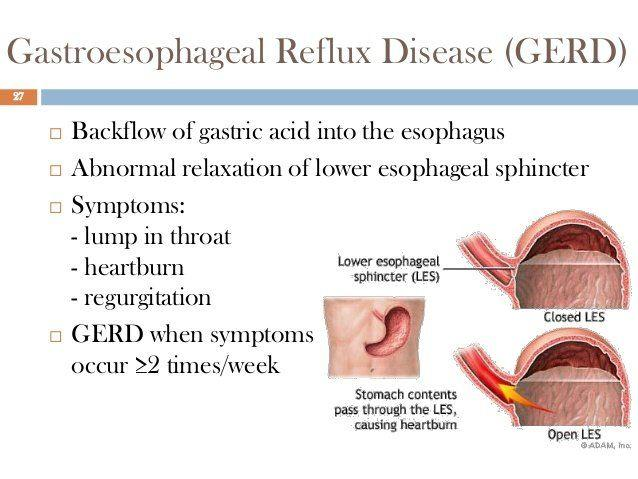 Lump in throat gerd