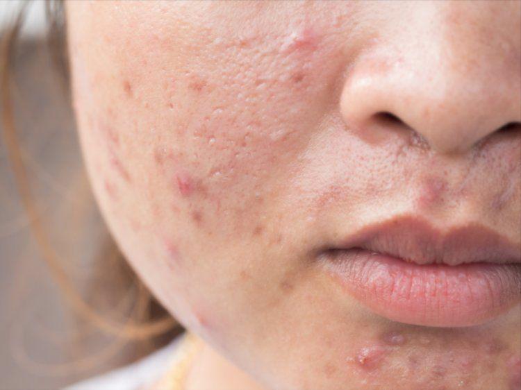 Clear facial acne