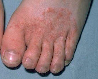 Itchy rash on bottom of foot